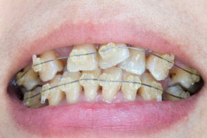 crooked teeth - orthodontic treatment